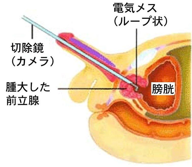 前立腺 肥大 治療 法